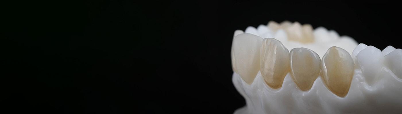 Dentale Vollkeramik: Einteilung und Indikationen