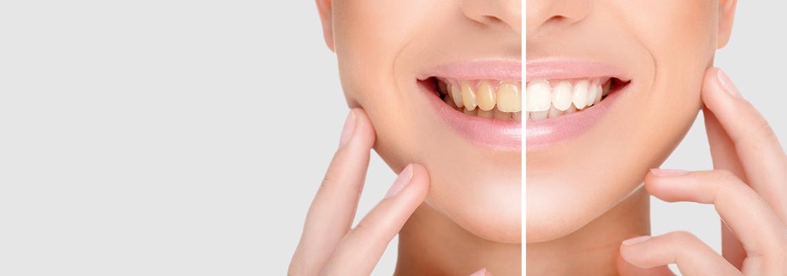 Bleaching: Sechs Fakten zur Zahnaufhellung in der Praxis