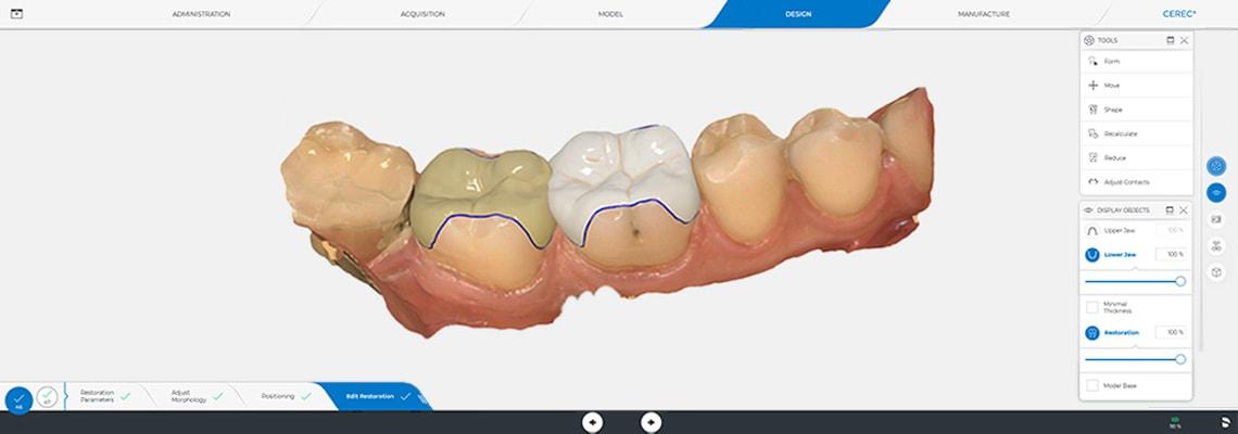 Charside-Fertigung in der Zahnarztpraxis