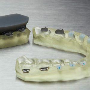 IBT Resin 3D-Druckmaterial dental Formlabs