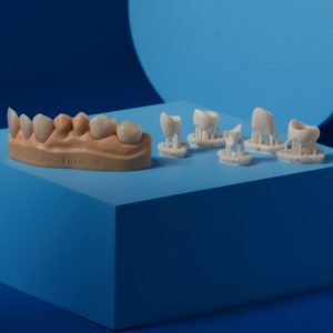 Permanant Crown Formlabs Druckmaterial dental