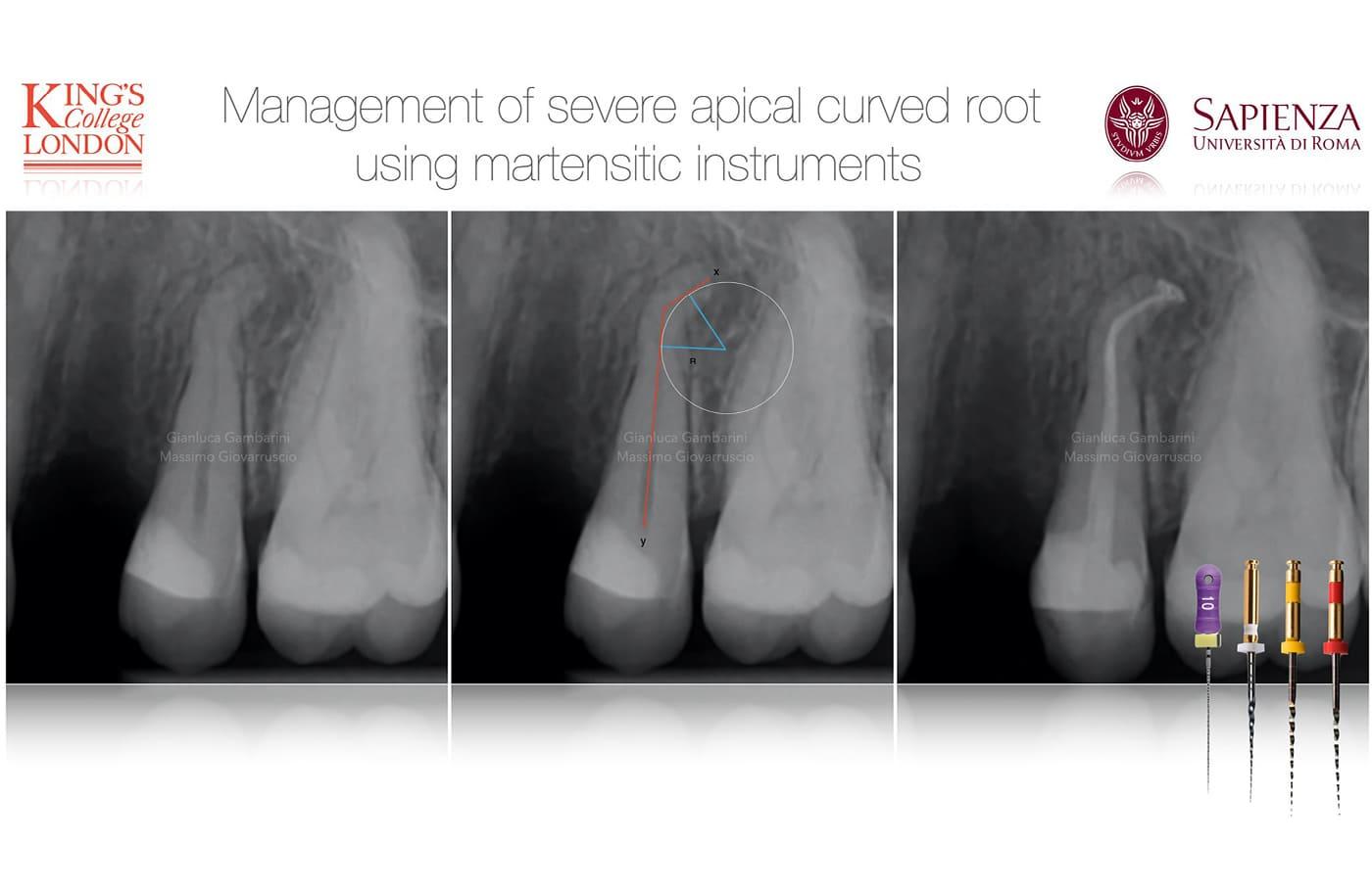 Trends Endodontie: martensitischeNiTi-Feilen